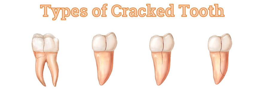 types of cracked tooth vancouver