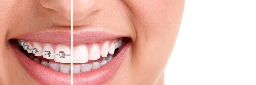 Invisalign by Vancouver Dentist - East Van Dental Clinic on