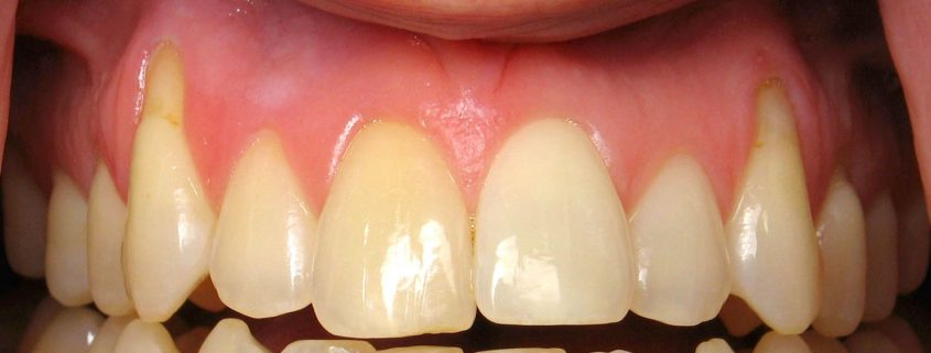 vancouver receding gum treatmentt