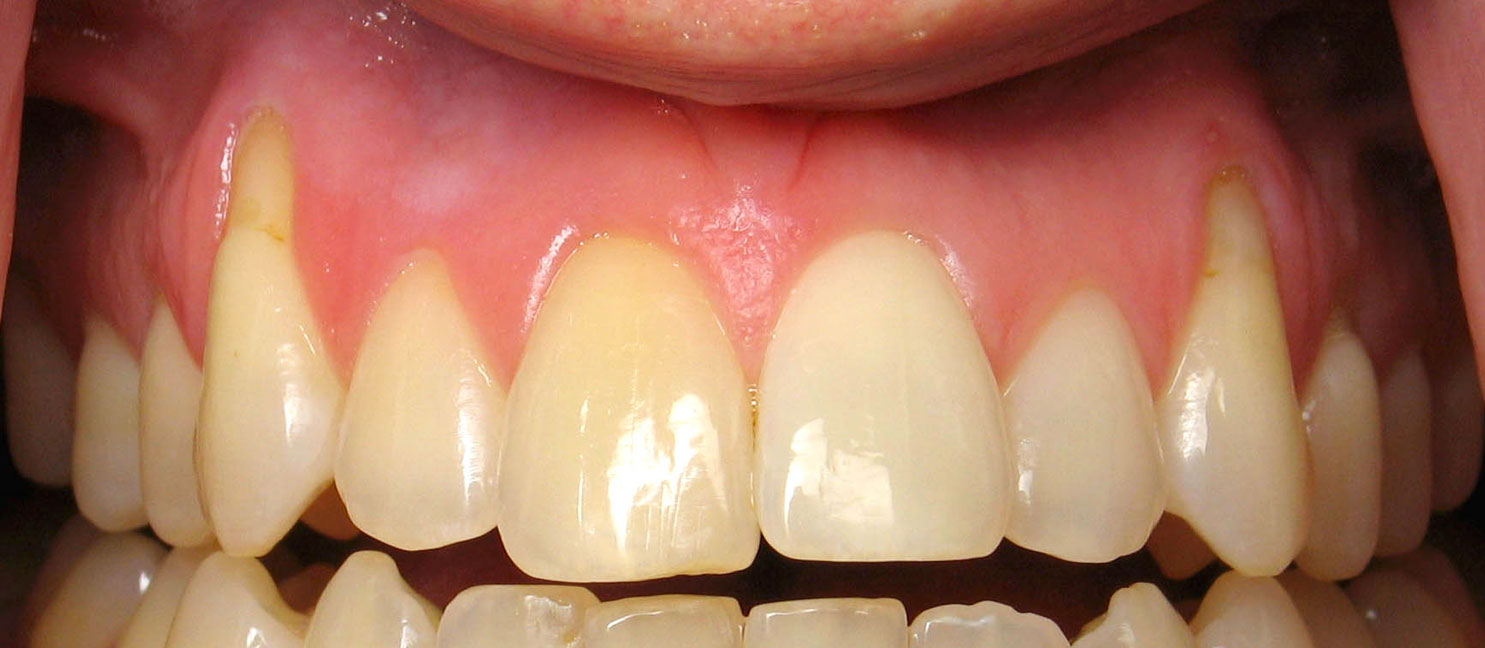 What to do if the gum receded from the tooth: dentists advice