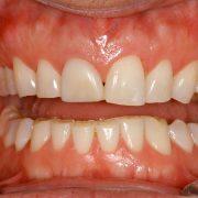 vancouver teeth grinding