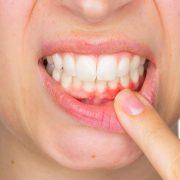 gum disease vancouver