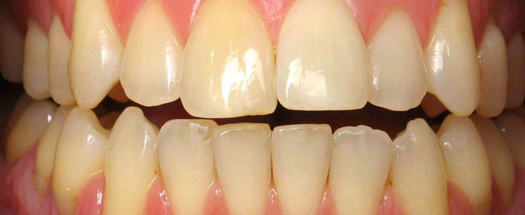 oral health east vancouver