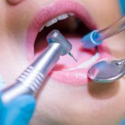oral surgery in vancouver