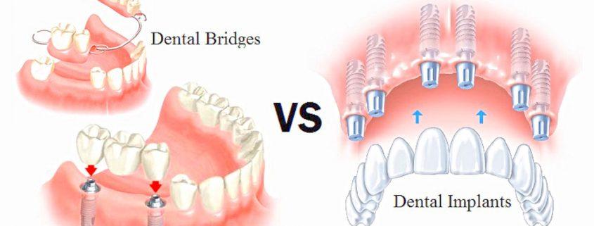 vancouver dental implants bridges dentures