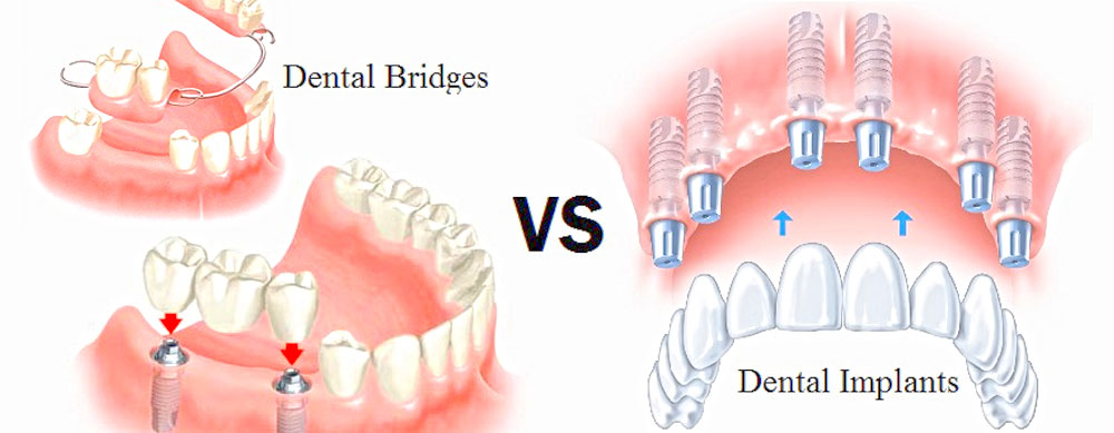 vancouver dental implants bridges dentures